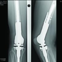 Bildene av en protese som hadde festet seg og var intakt gav faktisk lite følelse av trygghet. Jeg har alltid vært redd for at den skal gå i stykker.